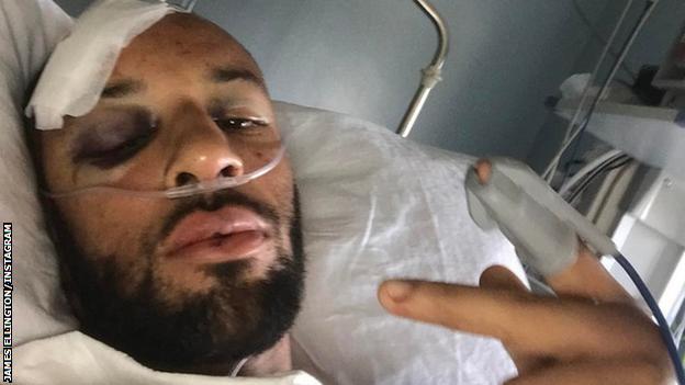James Ellington Post Surgery
